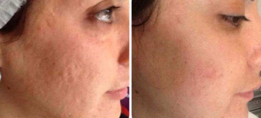 cicatrici-acnee-tratament