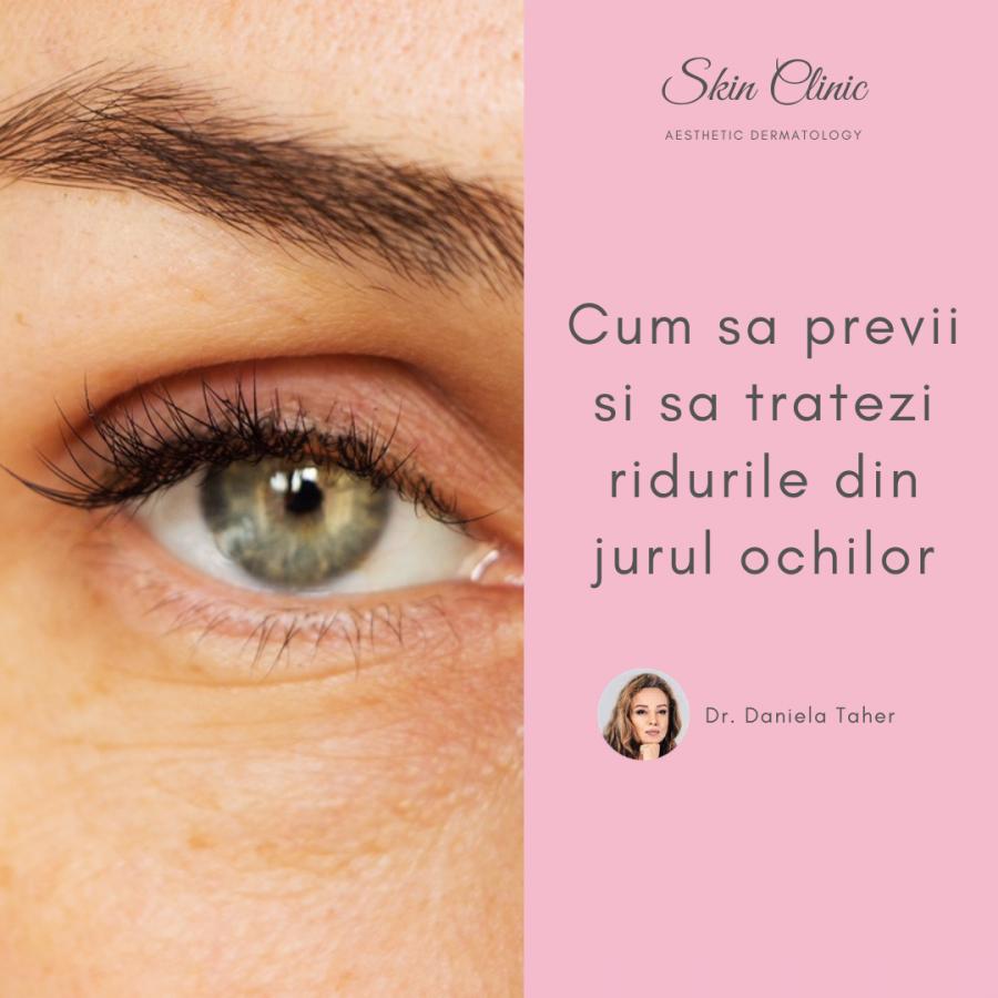 Cum sa previi si sa tratezi ridurile din jurul ochilor